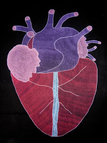 Exposition Dijon : Heartbeat-Heartbut